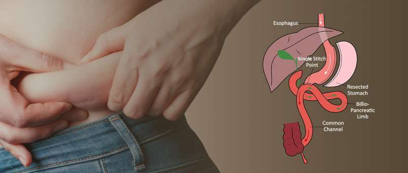 Duodenal-Switch-Bariatric-Surgery