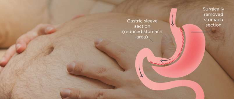 Gastric-Sleeve-Surgery