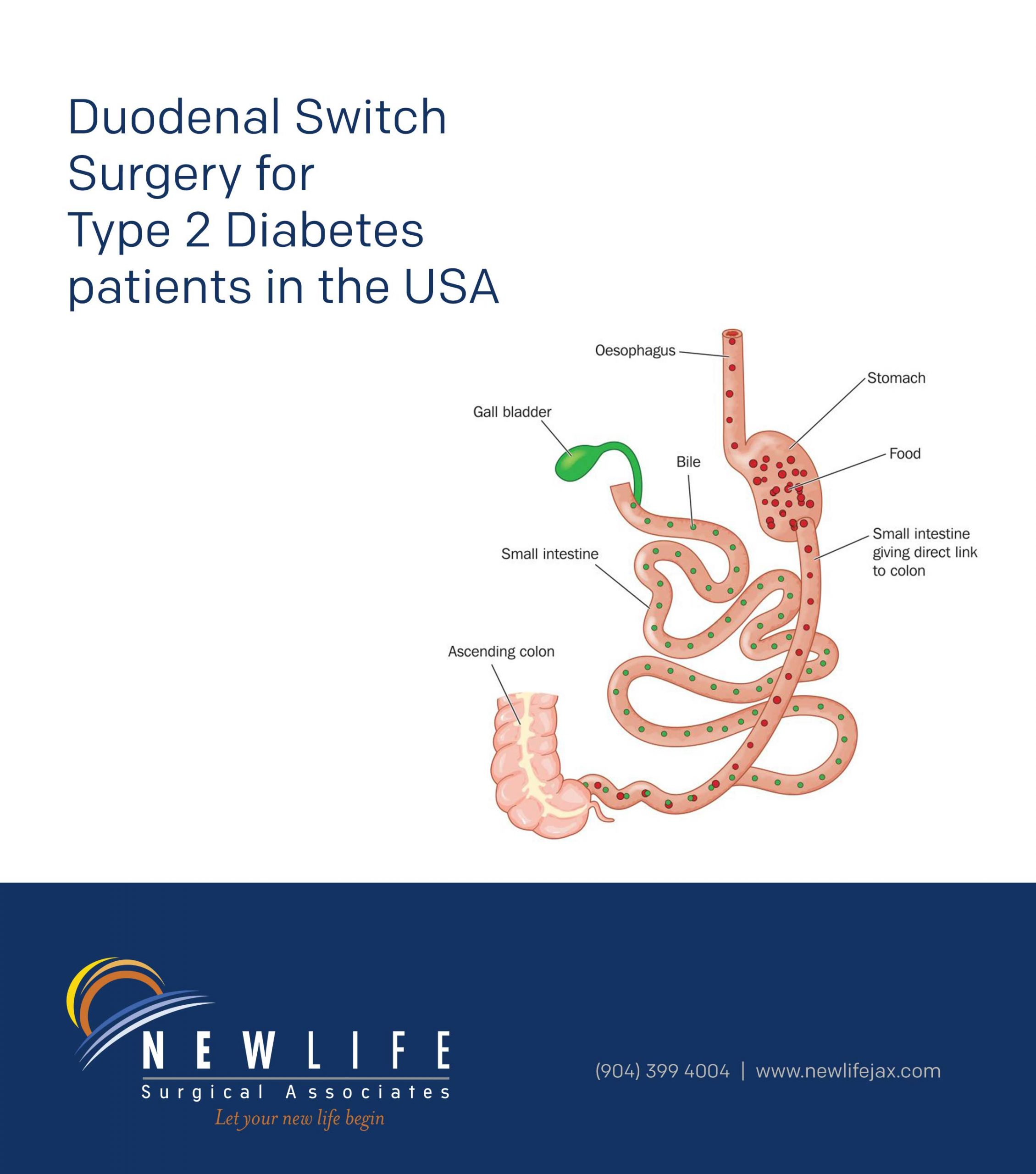 Duodenal Switch Surgery for Type 2 Diabetes patients in the USA