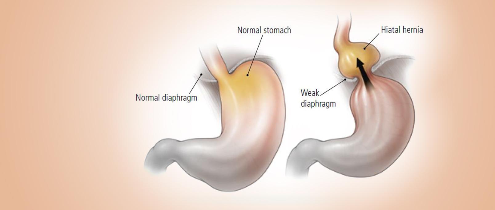Reflux-Haital-Hernia